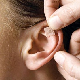 Ear acupuncture or auriculo therapy